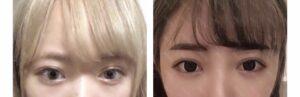 望月めるの目元の整形比較画像