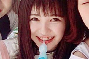 佐藤ノアは歯並びが悪くて笑わない?歯列矯正前と比較!サロン情報も気になる。