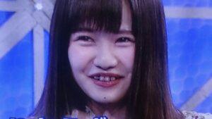 佐藤ノアの歯並びが悪い画像まとめ