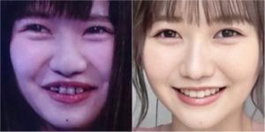 佐藤ノアの歯を矯正前と後で比較
