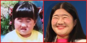 よしこの幼少期と現在の顔画像を比較!