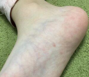 ノッチの次女・娘ゆうかちゃんの病気(異汗性湿疹)の足