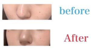 こはくぶちょー の鼻を整形前と後で画像比較
